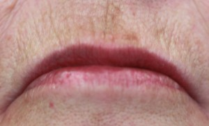 Softening of vertical lip lines