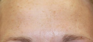 forhead frowning after treatment