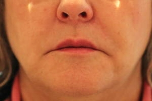 Softening of Nose to mouth lines after