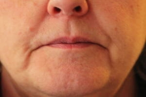 Softening of Nose to mouth lines before