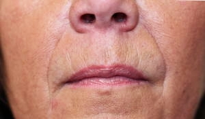 softening of nose to mouth lines using dermal filler after
