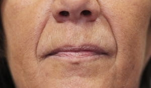 softening of nose to mouth lines using dermal filler before